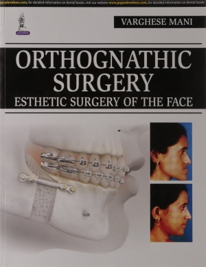 Orthognathic Surgery : Esthetic Surgery of the Face
