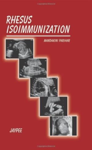 Rhesus Isoimmunization (FOGSI)