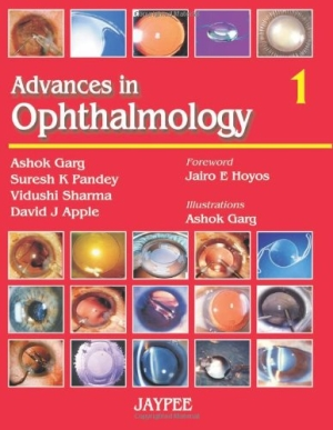 Advances in Ophthalmology( Vol 1)