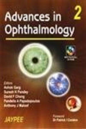 Advances in Ophthalmology( Vol 2)with CD-ROM
