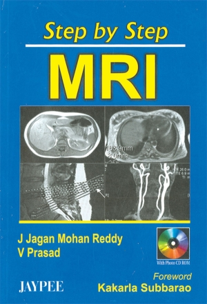 Step by Step MRI with CD-ROM