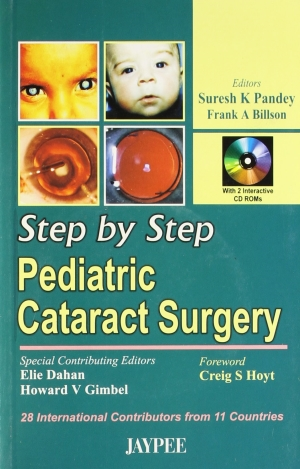 Step by Step Pediatric Cataract Surgery with CD-ROM