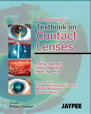 Dr Agarwal`s Textbook on Contact Lenses