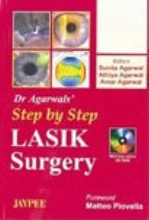 Dr Agarwal`s Step by Step LASIK Surgery (With CD-ROM)