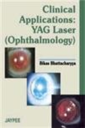 Clinical Application YAG Laser (Ophthalmology)