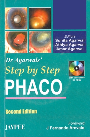 Dr Agarwal`s Step by Step Phaco (With 2 CD-ROMs)