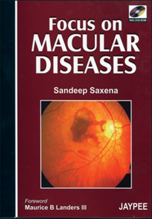 Focus on Macular Diseases (with DVD-ROM)