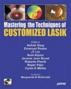 Mastering the Technique of Customized LASIK (with DVD-ROM)