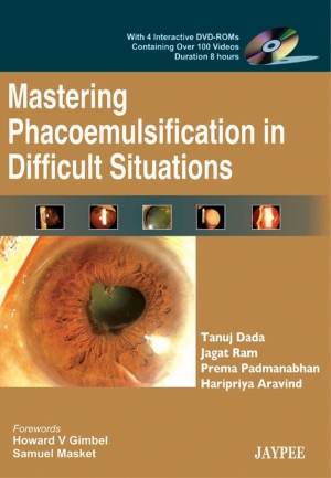Mastering Phacoemulsification in Difficult Situations with 4 DVD-ROMs