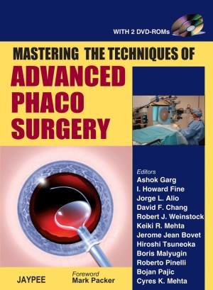 Mastering the Techniques of Advanced Phaco Surgery (with 2 DVD-ROMs)