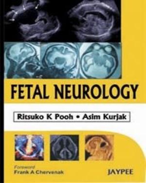Fetal Neurology