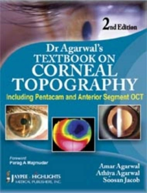 Dr Agarwal`s Textbook on Corneal Topography