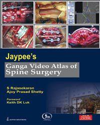 Jaypee`s Ganga Video Atlas of Spine Surgery