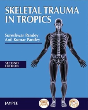 Skeletal Trauma in Tropics