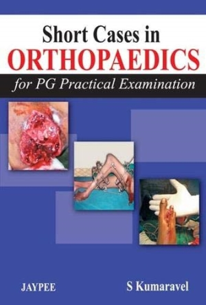 Short Cases in Orthopaedics (For PG Practical Examination)