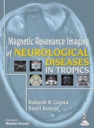 Magnetic Resonance Imaging of Neurological Diseases in Tropics
