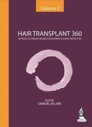 Hair Transplant 360: Advances, Techniques, Business Development, and Global Perspectives (Volume-3)