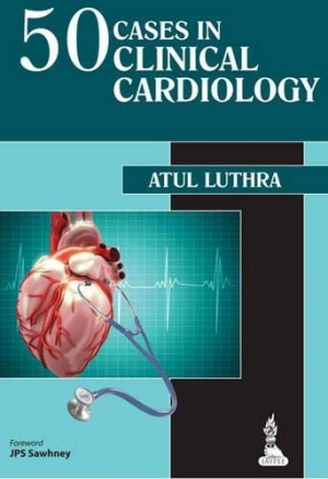 50 Cases in Clinical Cardiology: A Problem Solving Approach