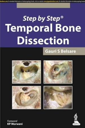 Step by Step Temporal Bone Dissection