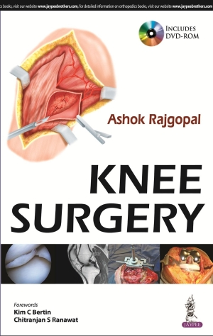 Knee Surgery (with Interactive DVD Rom)