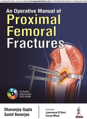 An Operative Manual of Proximal Femoral Fractures (Includes Interactive DVD_ROM)
