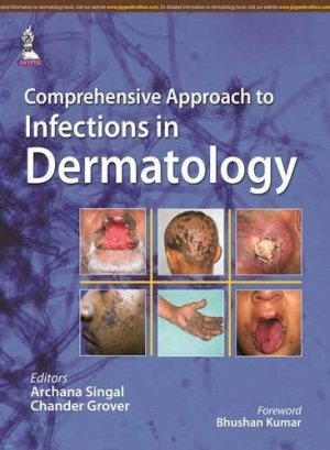 Comprehensive Approach to Infections in Dermatology
