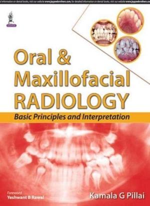 Oral and Maxillofacial Radiology: Basic Principles and Interpretation