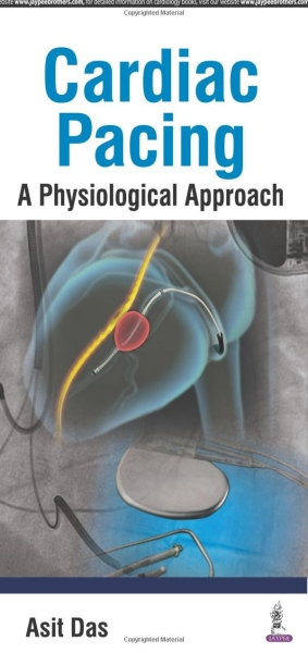 Cardiac Pacing: A Physiological Approach