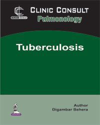 Clinic Consult Pulmonology: Tuberculosis